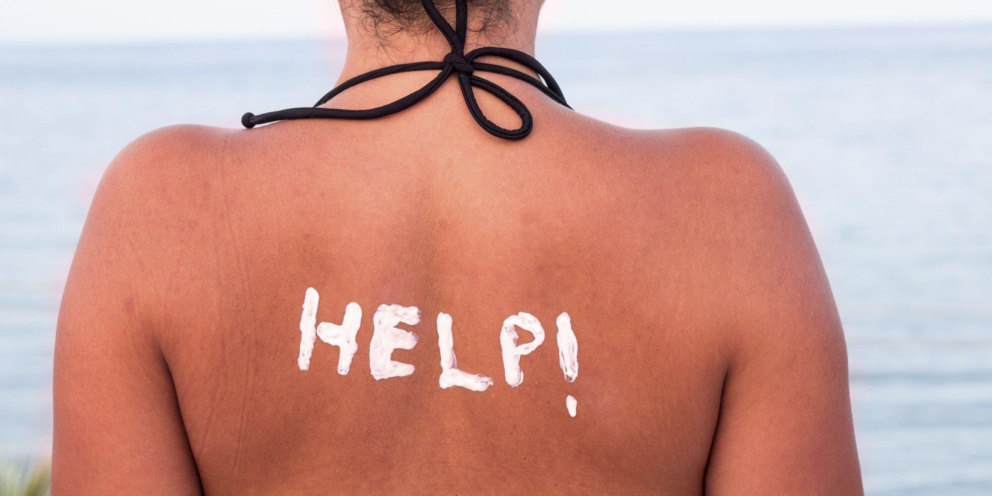 Güneş Yanığı Önemli Mi Tedavisi Nasıl Yapılır