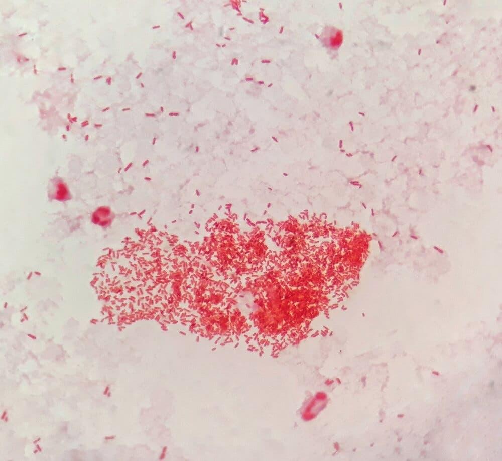 Kandaki Wbc Değerinin Sürekli Yüksek Çıkması